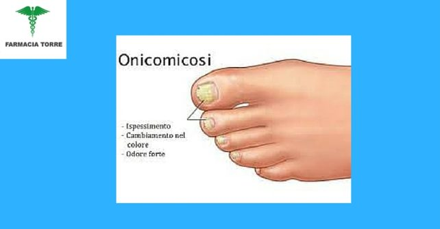 Onicomicosi: diagnosi e terapia